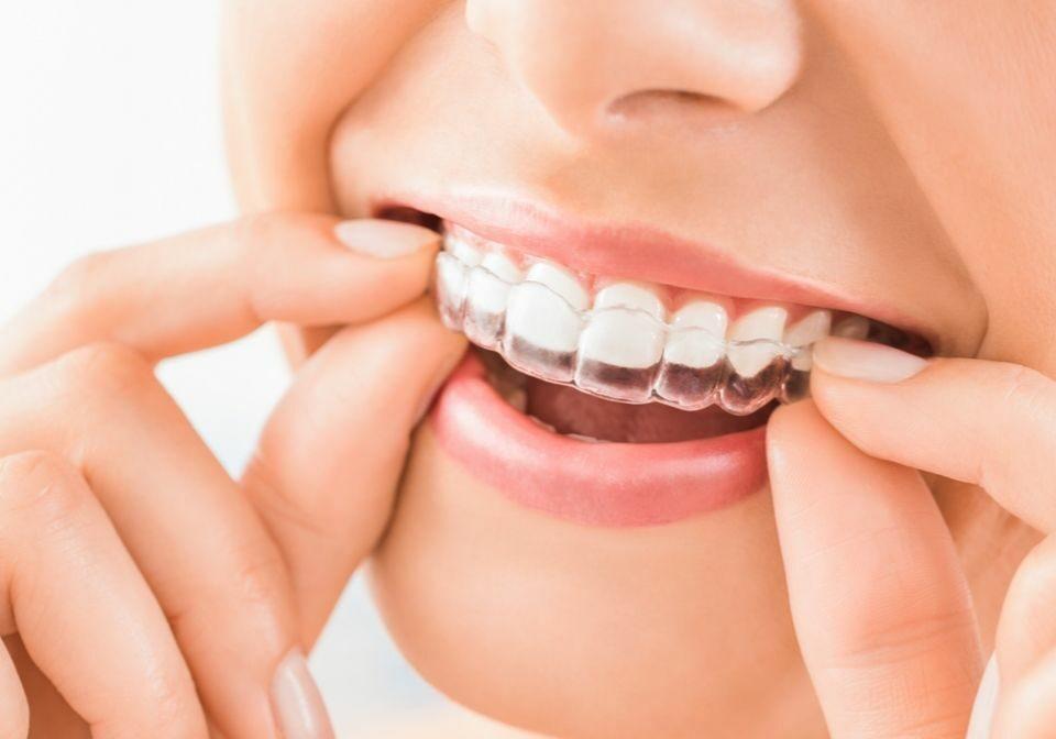 alineadores-transparentes-ortodoncia-invisible