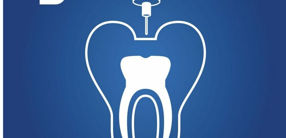 tratamiento-conducto-endodoncia