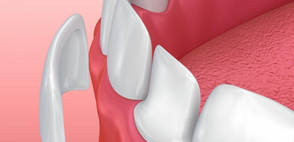 diseno-sonrisa-carillas-dentales