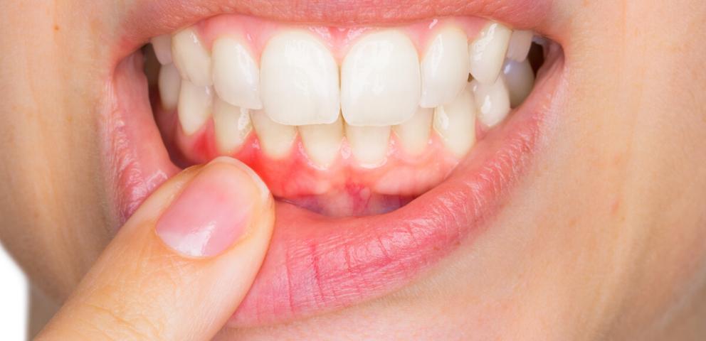 enfermedad-encias-periodontal